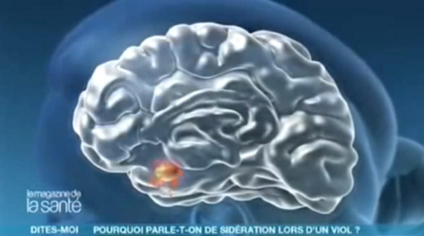 Comment fonctionne notre cerveau pendant une agression - Allo docteur - Amazon Training